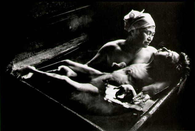W. Eugene Smith, Tomoko Uemura in her bath, Minamata, Japan, 1972